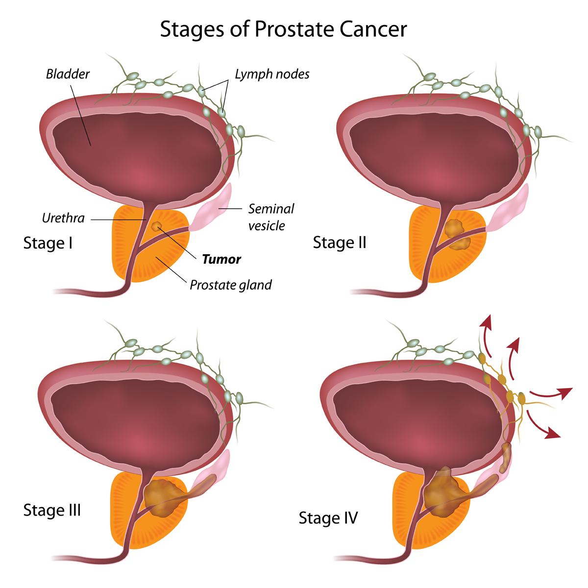 fumar demasiado ha causado prostatitis
