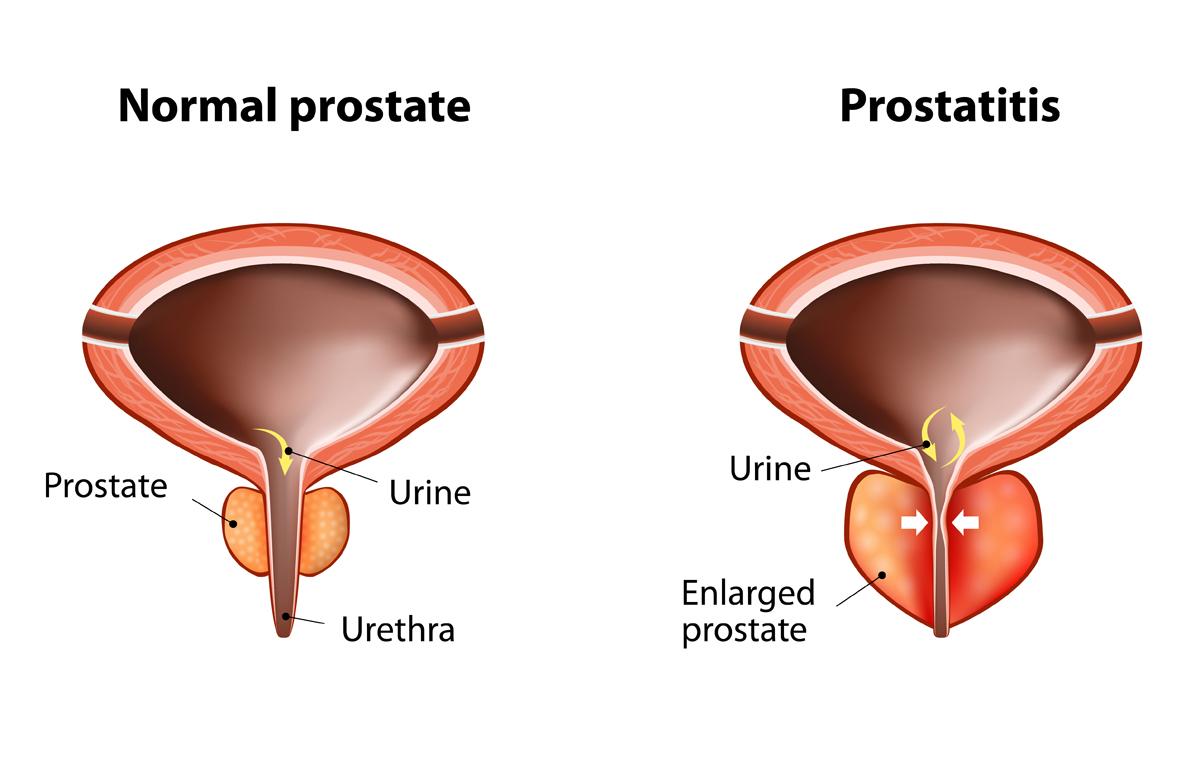 ¿Qué tipo de urnie oddro es común con la prostatitis?