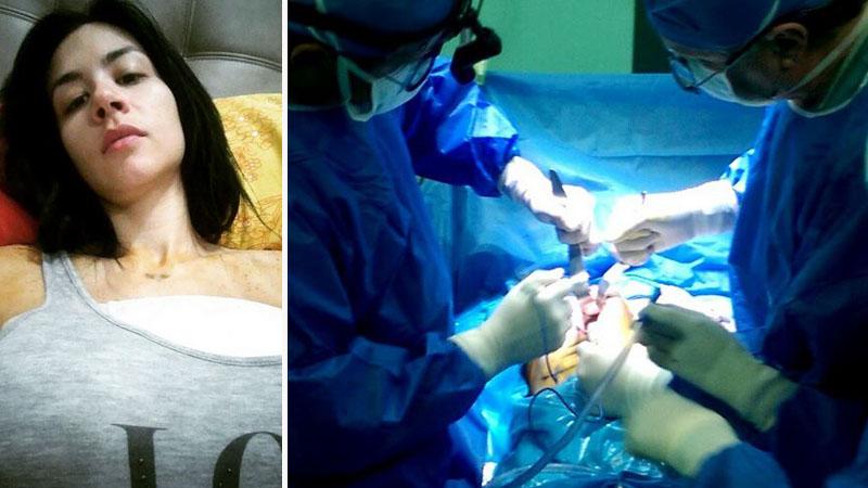 se-le-reviente-un-implante-a-diosa-canales