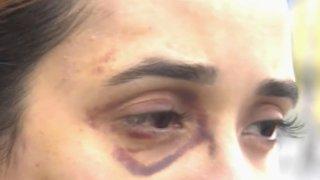 TLMD-ataque-contra-mujeres-en-brooklyn