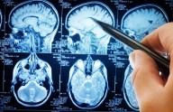 cerebro-paddock-8