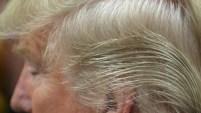 Su hija mayor y un doctor explican las razones por la llamativa cabellera del presidente.