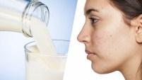 Investigadores encontraron relación entre el acné y el consumo de lácteos y azúcar.