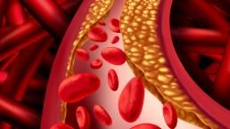 El asesino que llevas en la sangre: qué es y cómo frenarlo