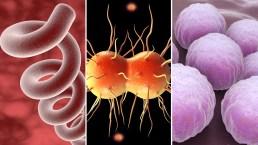 Sífilis en alza: Se duplican casos de bebés nacidos con la temible venérea