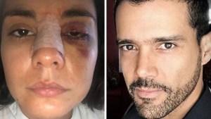 Actriz denuncia que fue agredida por su exnovio actor