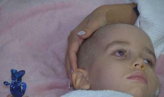 Niño cubano con tumor cerebral batalla por su vida