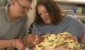 Bebita de 15 libras causa una gigante sorpresa