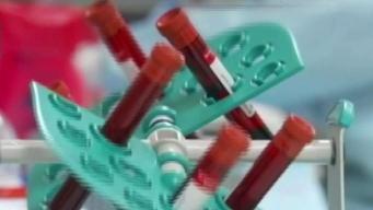 Preocupación por propagación de VIH en Massachusetts