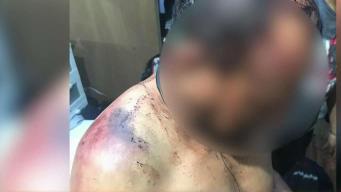 Hombre narra brutal ataque a batazos por una pareja