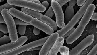 "EEUU: detectan ""superbacteria"" inmune a antibióticos"