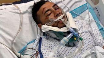 Familia: muere guatemalteco en coma tras brutal golpiza