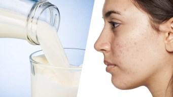 Investigadores: el acné y su vínculo con los lácteos