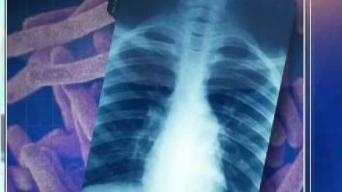 Reportan tres casos de tuberculosis en el condado