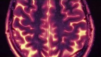 Revelan nuevo fármaco contra el Alzheimer