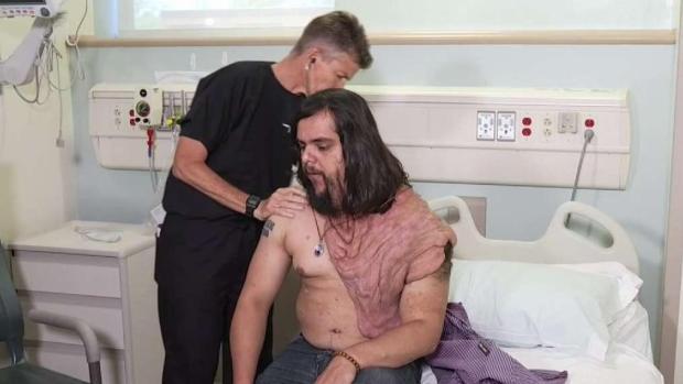 [TLMD - LA] Médicos esperan cambiar la vida de hombre con rara enfermeda