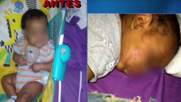 Policía: bebé es atacado a mordidas en guardería