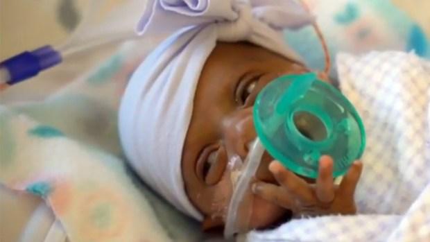 La bebé más pequeña del mundo se va a casa