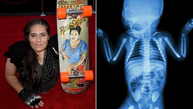Fotos: la rara enfermedad con la que vivió la actriz sin piernas