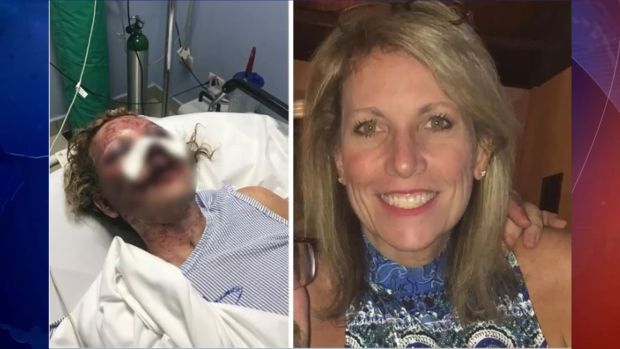 [TLMD - NY] Madre casi muere en ataque en Punta Cana