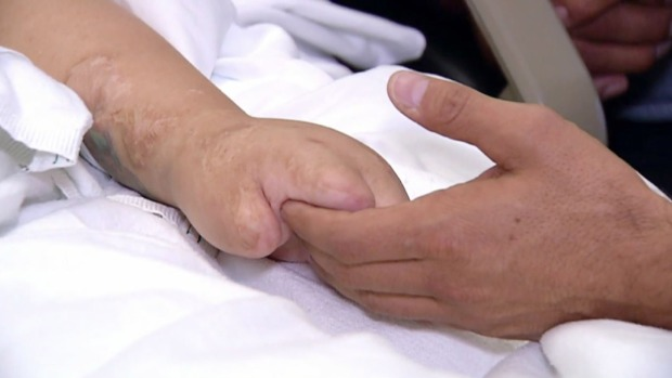 Indocumentado cuida de su esposa amputada por la diabetes
