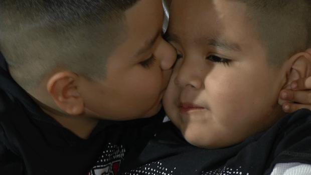 Fotos: Alfredito, el niño que vivió para contarla