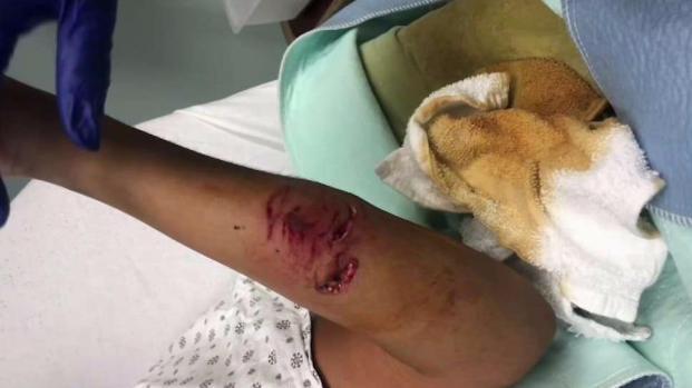 [TLMD - NY] Despiadado ataque de enfurecido pitbull