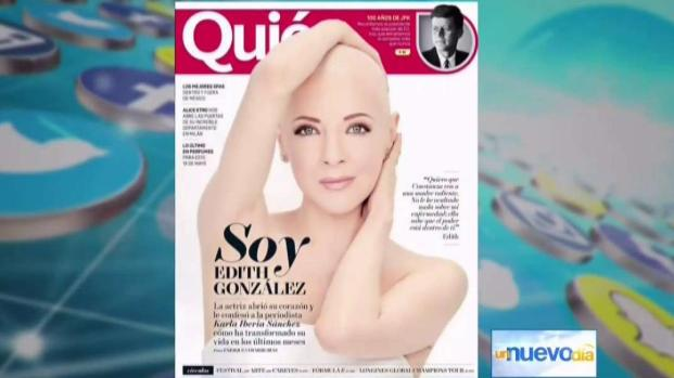 [TLMD - MIA] Edith Gonzalez muestra su lucha contra el cancer