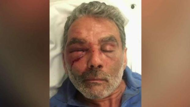 [TLMD - NY] Exigen justicia tras brutal paliza a taxista de NY