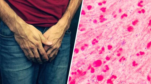 La contagiosa gonorrea: cómo saber si la tienes