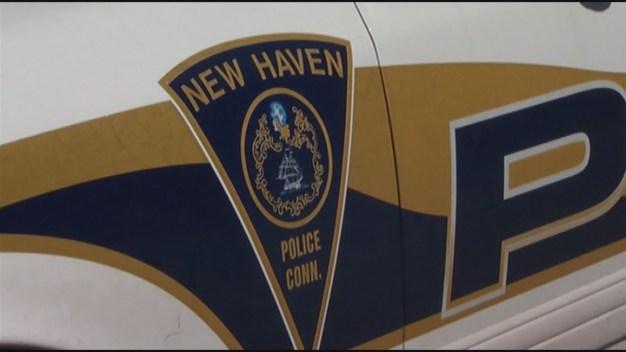 Adolescente en condición crítica tras balacera en New Haven