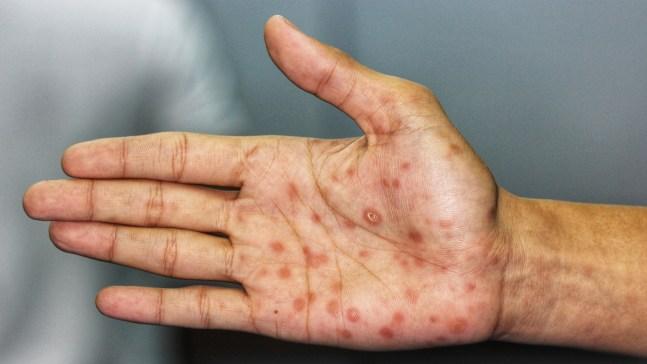 Qué es la sífilis y cómo te puede afectar