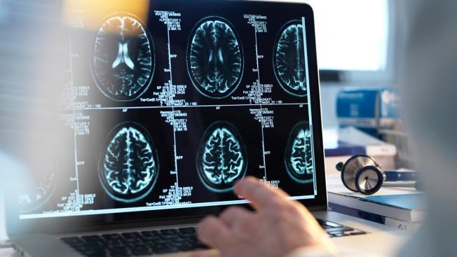 Como detectar derrame cerebral