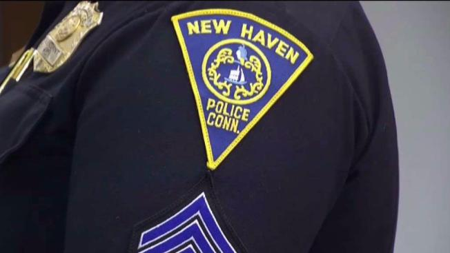 Hombre recibe disparo en el pene en New Haven