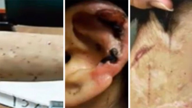 Mujer torturada en México narra su testimonio
