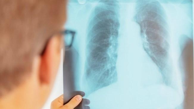 Examen masivo por tuberculosis en Lynn