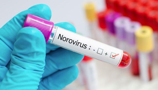 Norovirus afecta a cientos de estudiantes en escuela de Pasco